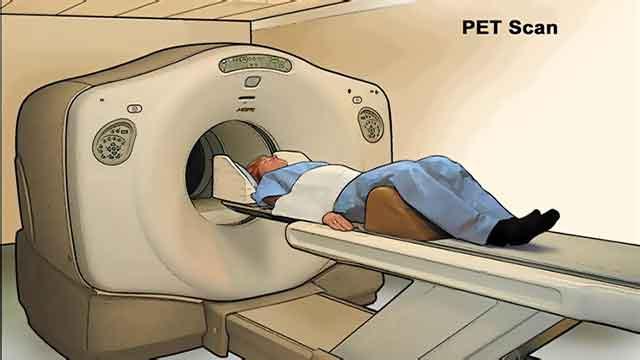 المسح الطبقي بواسطة انبعاث البوزيترونات PET