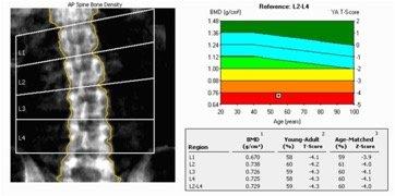 أجهزة قياس الكثافة العظمية